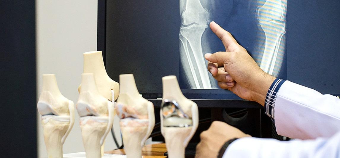 need to visit an orthopedist